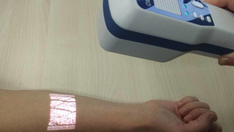 Визуализатор позволяет быстро найти вену и произвести необходимые манипуляции
