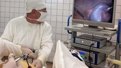 Эндоскопическая операция ведётся с помощью миниатюрной видеокамеры